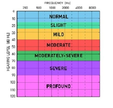 Audiogram Curetechie causes of hearing loss post
